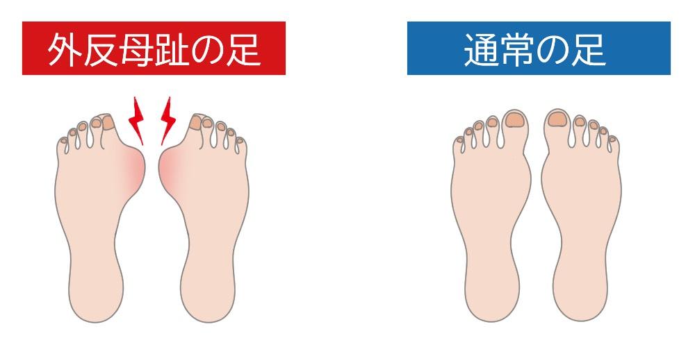 親指 しびれ 左足