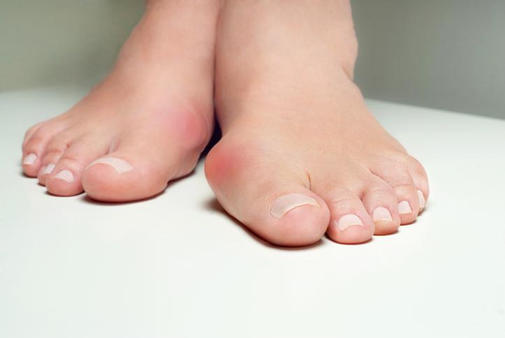 親指 痛い の 足