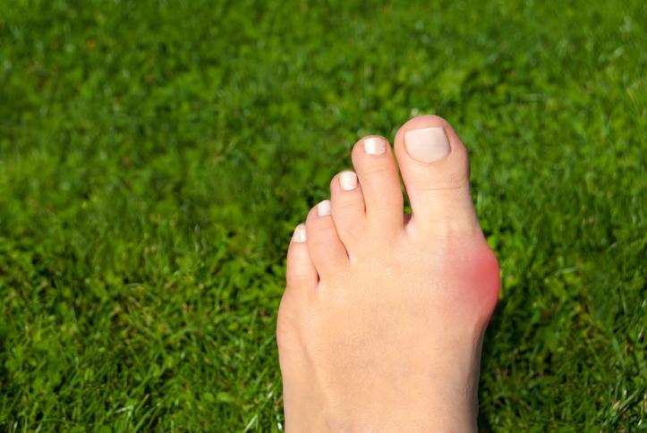 外反母趾とは。チェック方法、原因、治し方、改善トレーニングを紹介