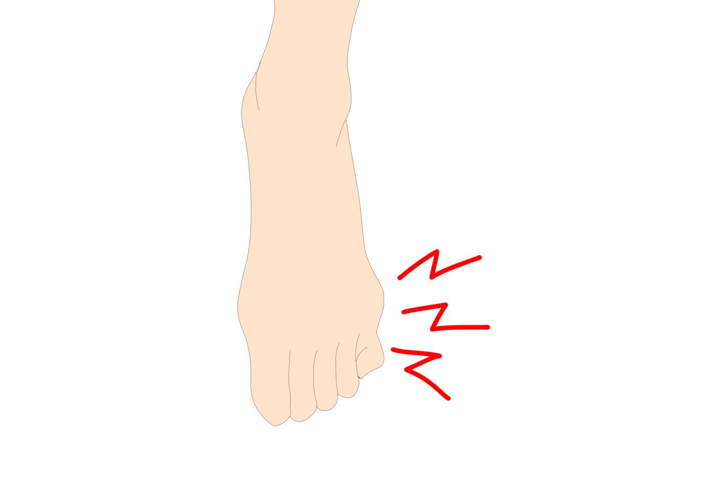 足 の 小指 の 付け根 痛い 内反小趾・バニオネット~足の小指の付け根の痛み・腫れ