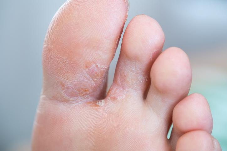 かゆい 足 水ぶくれ 「足のかゆみ」でまさかの足切断!主治医の指示を無視した55歳妻の後悔
