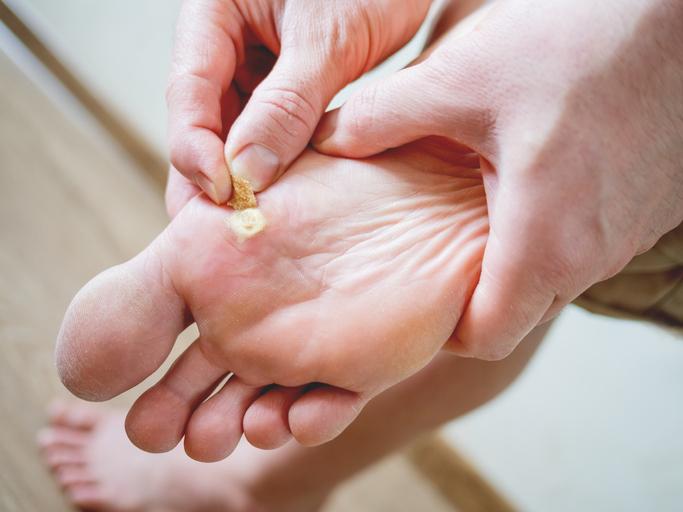 が つる 足 の 病気 指