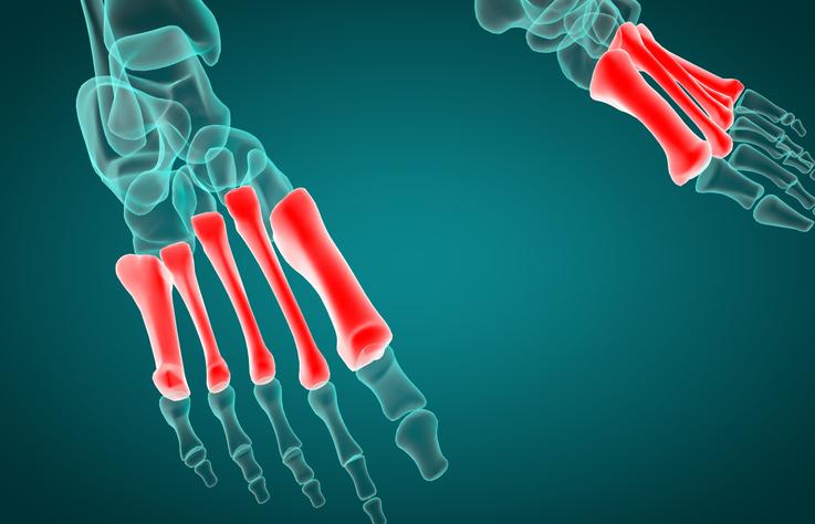 痛い の が 歩く 付け根 足 と の 指