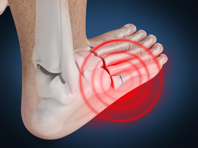 骨折 テーピング 親指 足 足の指は骨折しても歩ける?全治までの治療期間を症状別に紹介!