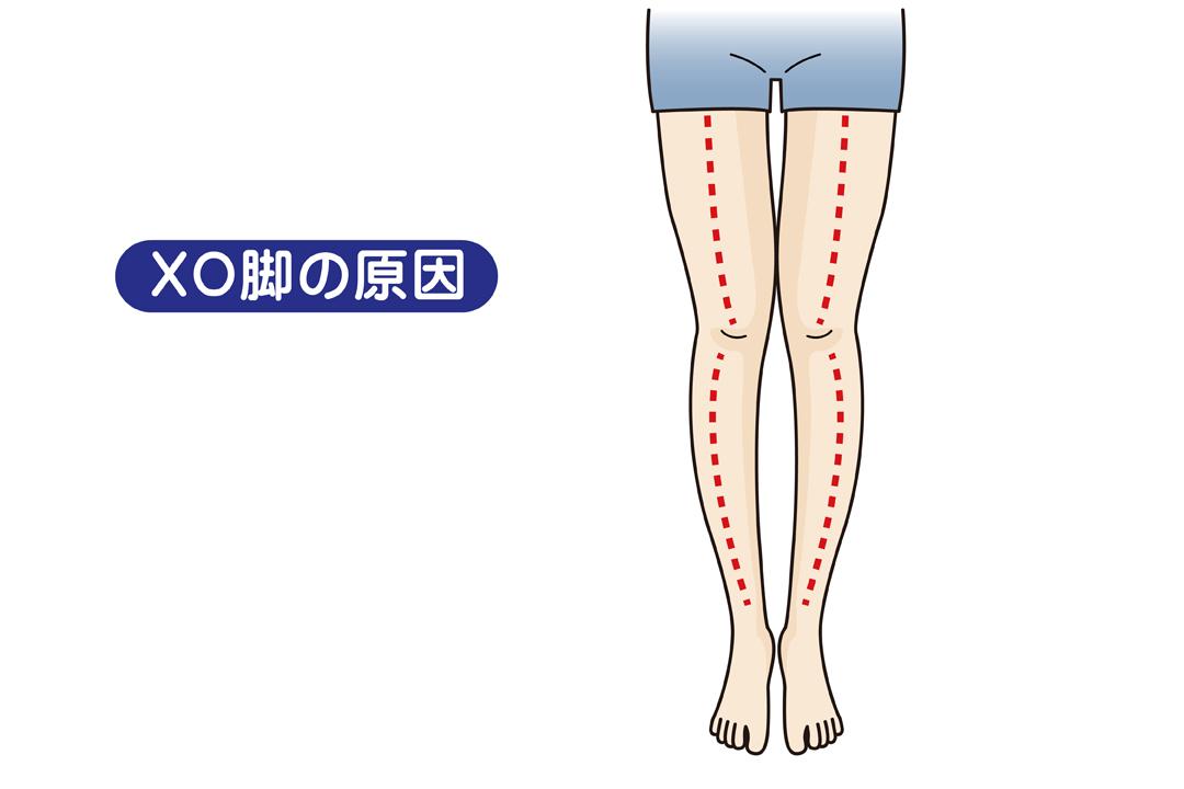 原因 x 脚 【コラム18】美しさは足のライン③~X脚・XO脚篇